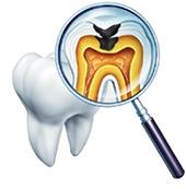 精密根管治療(歯内療法)