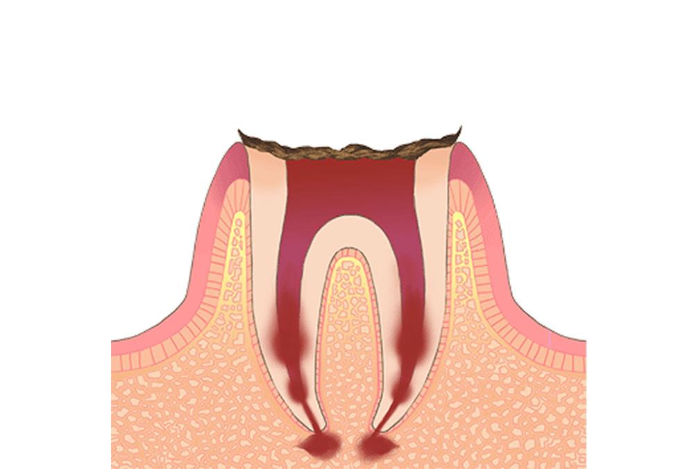 歯根だけが残った状態の虫歯