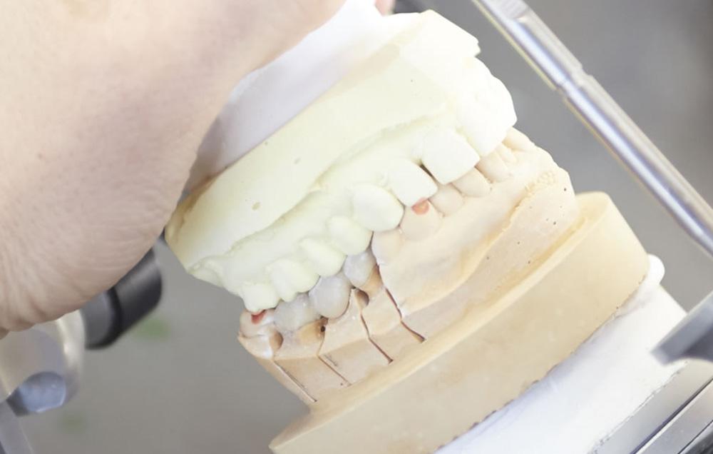 義歯の調整・製作