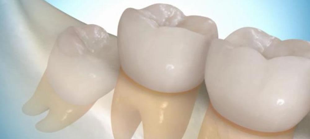 親知らずの抜歯・保存