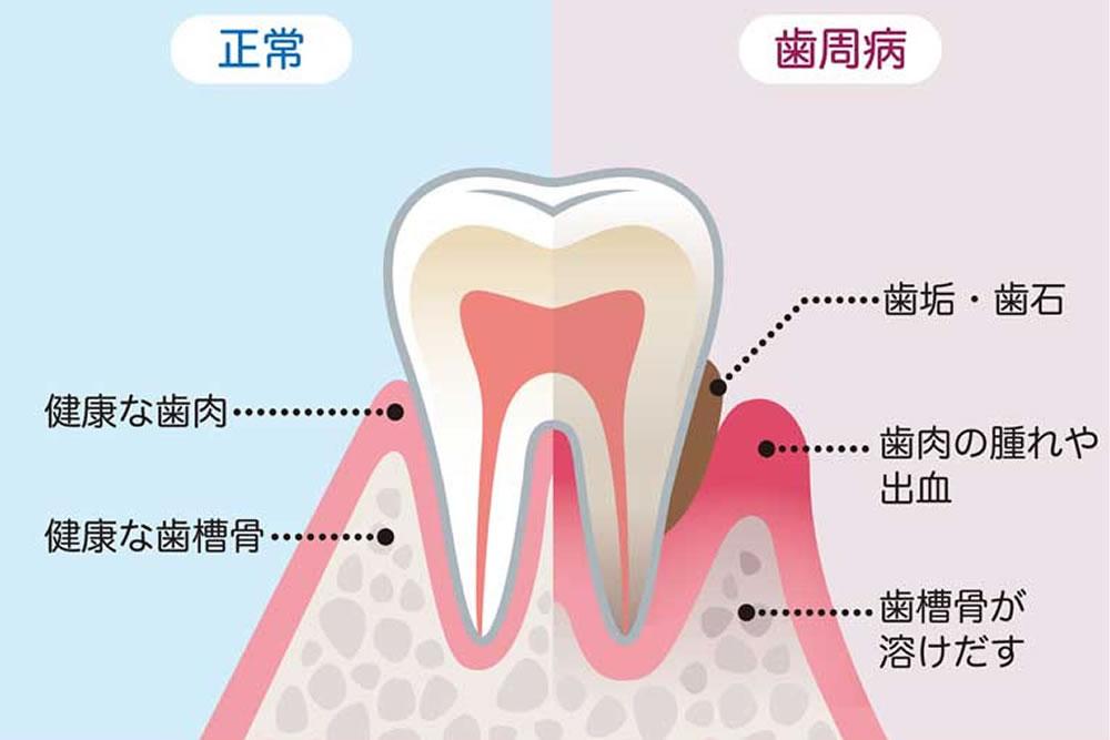 歯周病(歯槽膿漏)